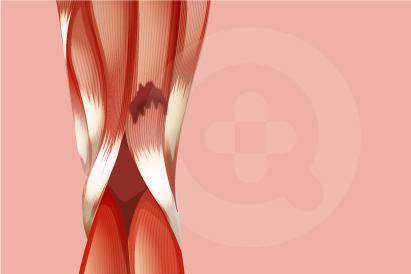 Cedera hamstring ditandai dengan gejala seperti rasa sakit secara tiba-tiba dan munculnya bengkak pada bagian belakang paha.
