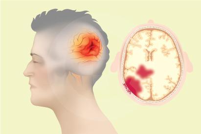 Cedera kepala berat biasanya disebabkan oleh pukulan keras ke kepala atau tubuh