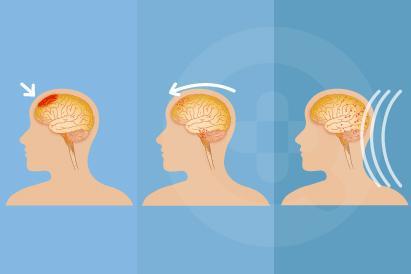 Cedera kepala ringan adalah cedera atau trauma pada kepala dan otak yang dapat memberikan dampak pada fungsi otak.