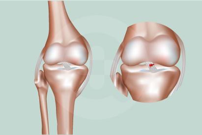 Cedera ACL (ligamen lutut anterior) bisa timbul ketika seseorang melakukan gerakan tiba-tiba saat berlari atau melompat