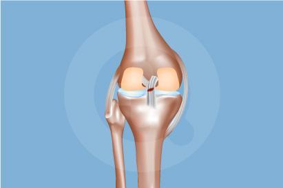 Cedera Posterior Cruciate Ligament (PCL)
