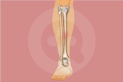 Cedera Tulang Kering