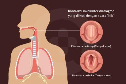 Makan terlalu cepat, merokok, minum dan konsumsi makanan dalam jumlah banyak dapat menjadi penyebab cegukan