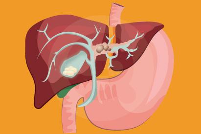 Cholangitis bisa terjadi secara mendadak (akut) atau jangka panjang (kronis)