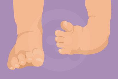 Kondisi clubfoot terjadi sejak lahir, tapi tidak memicu rasa sakit