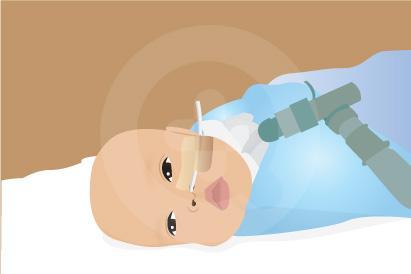 Congenital central hypoventilation syndrome adalah gangguan saraf yang ditandai dengan kesulitan bernapas saat tidur