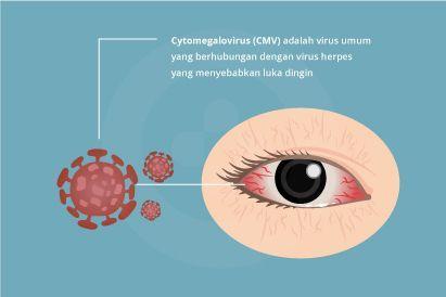 Cytomegalovirus dapat menyebar melalui kontak fisik dengan cairan dari tubuh orang yang terinfeksi.