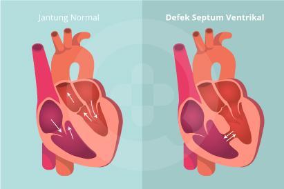 Defek septum ventrikel bisa terjadi akibat adanya lubang pada jantung