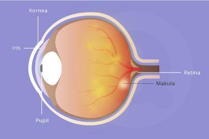 Degenerasi makula membuat mata sulit melihat obyek secara detail