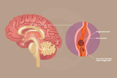 Demensia umumnya terjadi pada lansia dan penyakit ini dapat ditandai dengan adanya perubahan kepribadian.