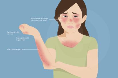 Dermatomiositis ditandai dengan ruam kulit serta lemah otot dan diobati dengan konsumsi obat kortikosteroid.