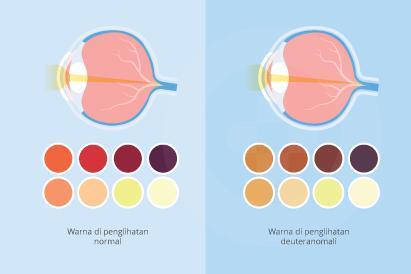 Deuteranomali bukan merupakan gangguan mata berat dan penderitanya dapat menggunakan lensa kontak khusus.