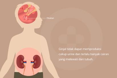 Diabetes insipidus adalah dimana seseorang memproduksi urine secara berlebihan dan sering merasa haus