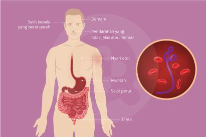 Ebola dapat menyebabkan perdarahan, gagal organ, bahkan kematian