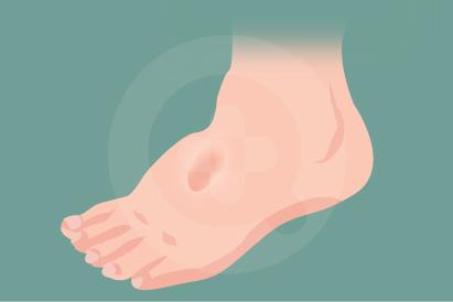 Edema umumnya ditemukan pada tangan, lengan, kaki, termasuk pergelangan kaki.