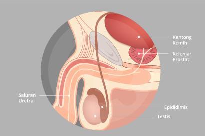 Ejakulasi dini adalah kondisi saat pelepasan air mani (ejakulasi) menjadi lebih cepat dari yang diharapkan