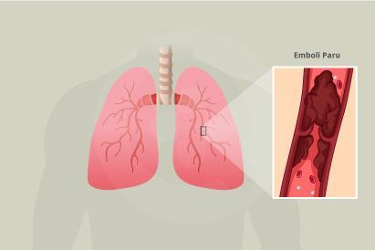 Emboli paru akan menyebabkan paru-paru kesulitan menyediakan kebutuhan oksigen bagi tubuh dan bisa berakibat fatal jika tidak segera diobati.