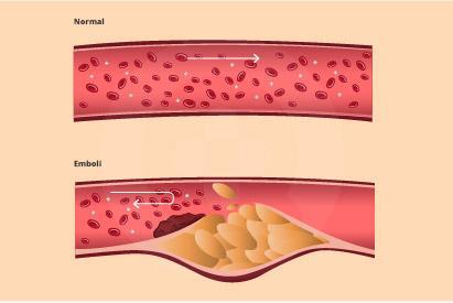 Obesitas dan gaya hidup yang tidak sehat dapat meningkatkan risiko terbentuknya emboli pada arteri