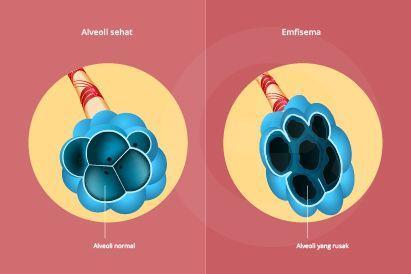 Emfisema adalah penyakit paru-paru kronis yang berisiko kematian