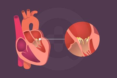 Endokarditis adalah penyakit yang disebabkan infeksi bakteri, jamur, atau kuman yang terjadi pada lapisan jantung dan katup jantung.