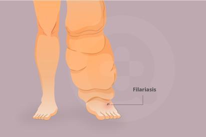 Kaki gajah atau filariasis disebabkan oleh cacing filaria