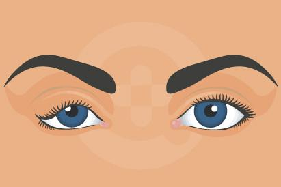 Floppy Eyelid Syndrome