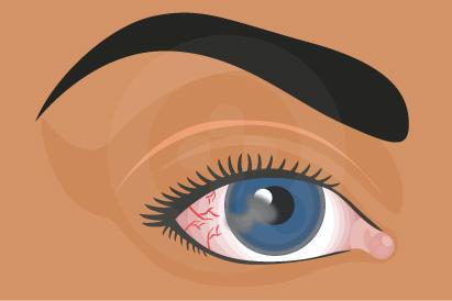 Salah satu gejala fotokeratisis adalah gangguan penglihatan sementara.