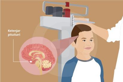 Gangguan pertumbuhan umumnya menandakan adanya masalah pada kelenjar atau penyakit tertentu.