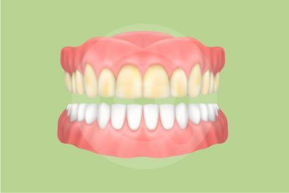Faktor genetik dapat mengakibatkan perubahan warna gigi, termasuk membuat gigi kuning.