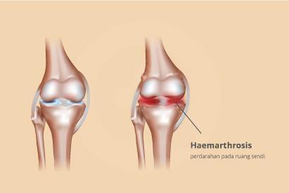 Haemarthrosis ditandai dengan gejala seperti nyeri, kesemutan, dan pembengkakan di sekitar sendi.