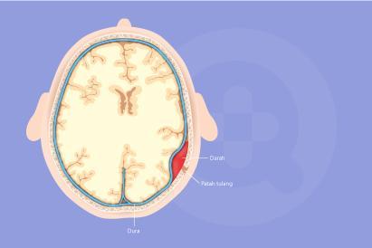 Hematoma epidural merupakan perdarahan di dalam kepala akibat luka atau cedera benturan