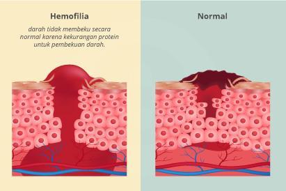 Perdarahan yang dialami penderita hemofilia dapat mengancam nyawa