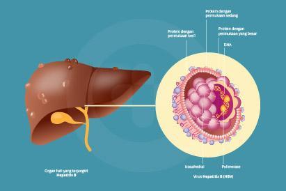 Hepatitis B adalah infeksi hati yang dapat menjadi penyakit yang kronis ketika menginfeksi bayi