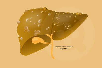 Hepatitis C adalah penyakit kronis (jangka panjang) yang bahkan bisa menyebabkan kematian
