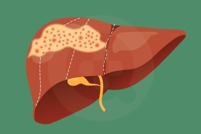 hepatoblastoma adalah jenis kanker ganas di hati (liver) yang terjadi pada anak-anak