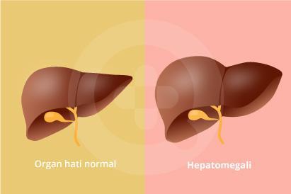 Hepatomagali adalah penyakit yang ditandai dengan adanya pembesaran hati secara abnormal