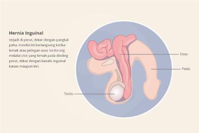 Hernia inguinal ditandai dengan tonjolan pada kedua sisi area tulang kemaluan yang menimbulkan nyeri.