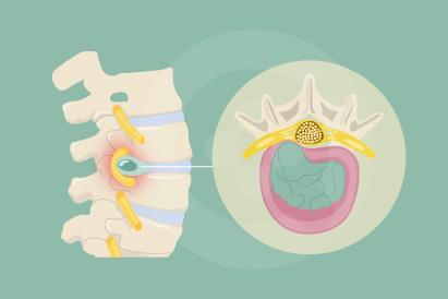 Hernia nukleus pulposus atau saraf kejepit terjadi pada tulang punggung
