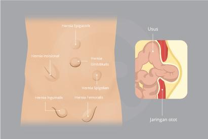 Hernia adalah terdorong keluarnya organ dalam tubuh melalui jaringan ikat disekitarnya yang lemah