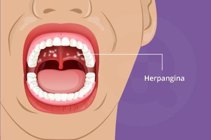 Herpangina adalah penyakit anak-anak yang disebabkan infeksi virus dengan gejala berupa bisul dalam mulut.
