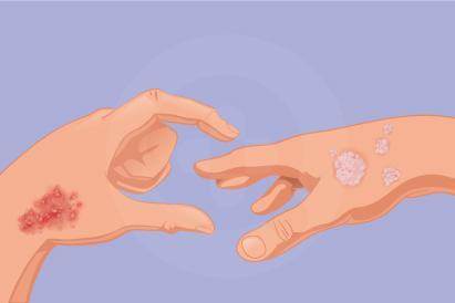 Infeksi jamur bisa muncul pada permukaan kulit atau di dalam tubuh