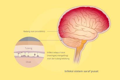 Infeksi sistem saraf pusat disebabkan infeksi virus pada otak atau sumsum tulang belakang hingga menimbulkan peradangan.