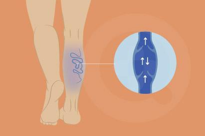 Insufisiensi vena adalah kondisi penumpukan darah di pembuluh darah di kaki.