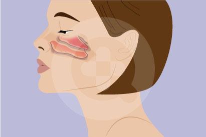 Iritasi hidung lebih sering dialami oleh orang usia 20 tahunan