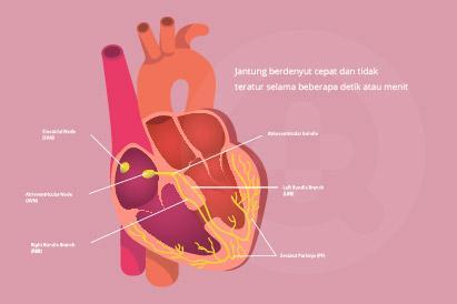 Beberapa penyebab jantung berdebar adalah setelah mengonsumsi kafein, nikotin, atau obat diet