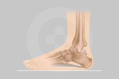 Kaki yang tidak memiliki lengkung kaki disebut sebagai kaki rata