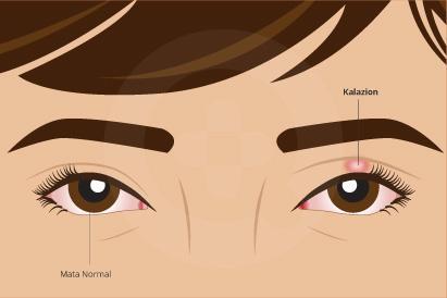 Kalazion merupakan pembengkakan atau benjolan kecil tanpa nyeri yang muncul di kelopak mata