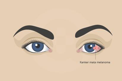 Kanker mata melanoma dapat dipicu oleh paparan sinar UV yang terlalu lama