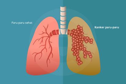 Kanker paru lebih banyak menyerang perokok