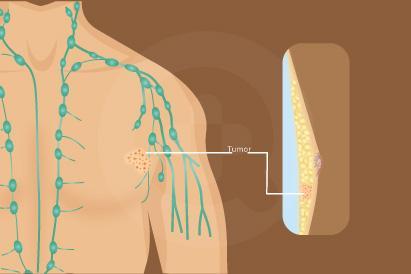 Kanker Payudara pada Pria